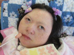 別の女性の利用者さんのお顔の近くにもピンク色の綿棒を近づけている様子