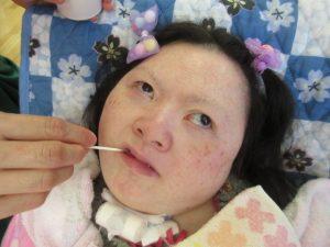 別の女性の利用者さんのお口にピンクの綿棒を入れている様子